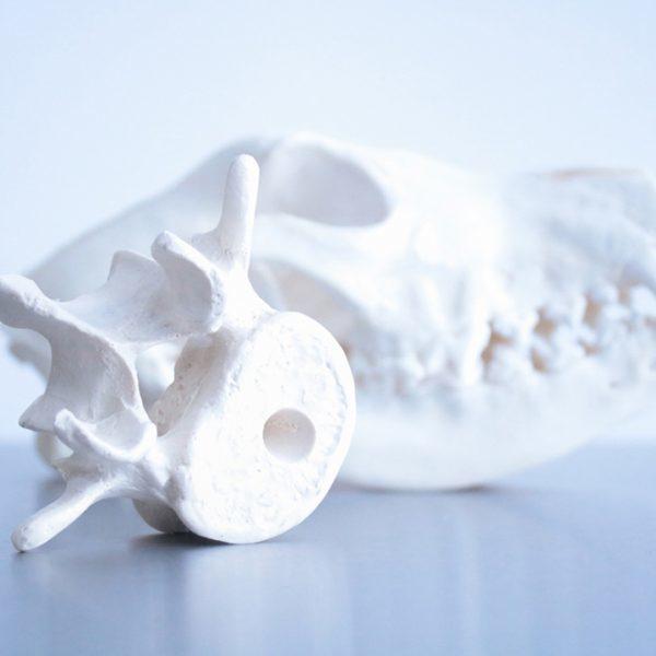 Knochen-und-Gelenkschirurgie-600x600